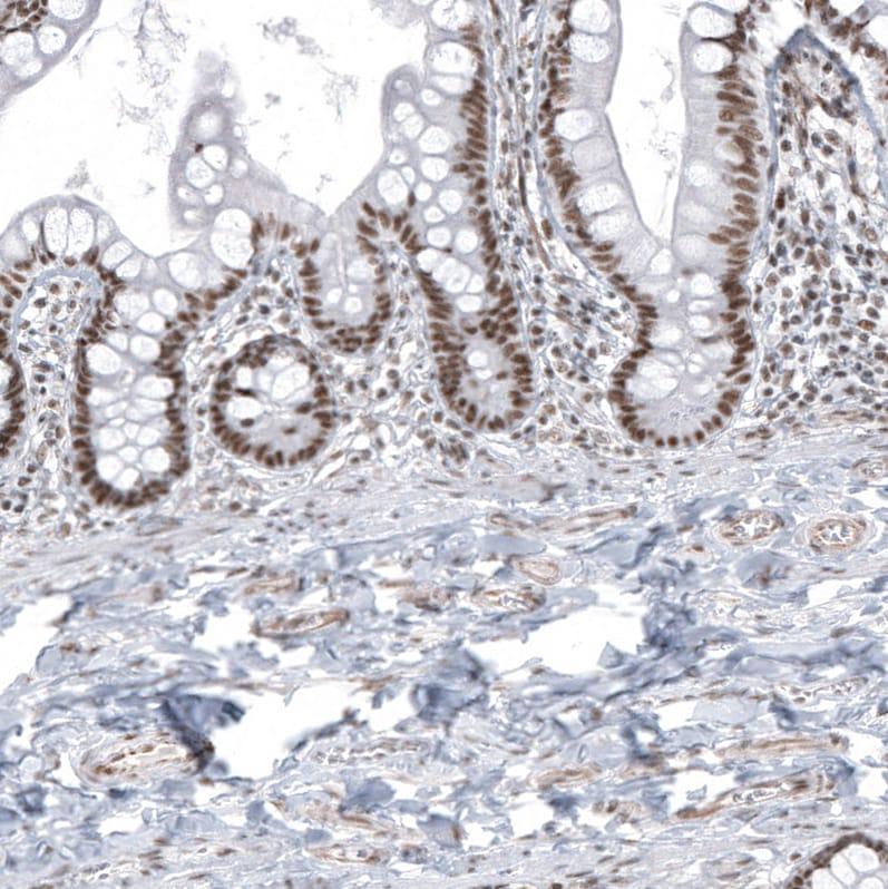 Immunohistochemistry (Formalin/PFA-fixed paraffin-embedded sections) - Anti-KMT5C/SUV4-20h2 antibody (ab267359)