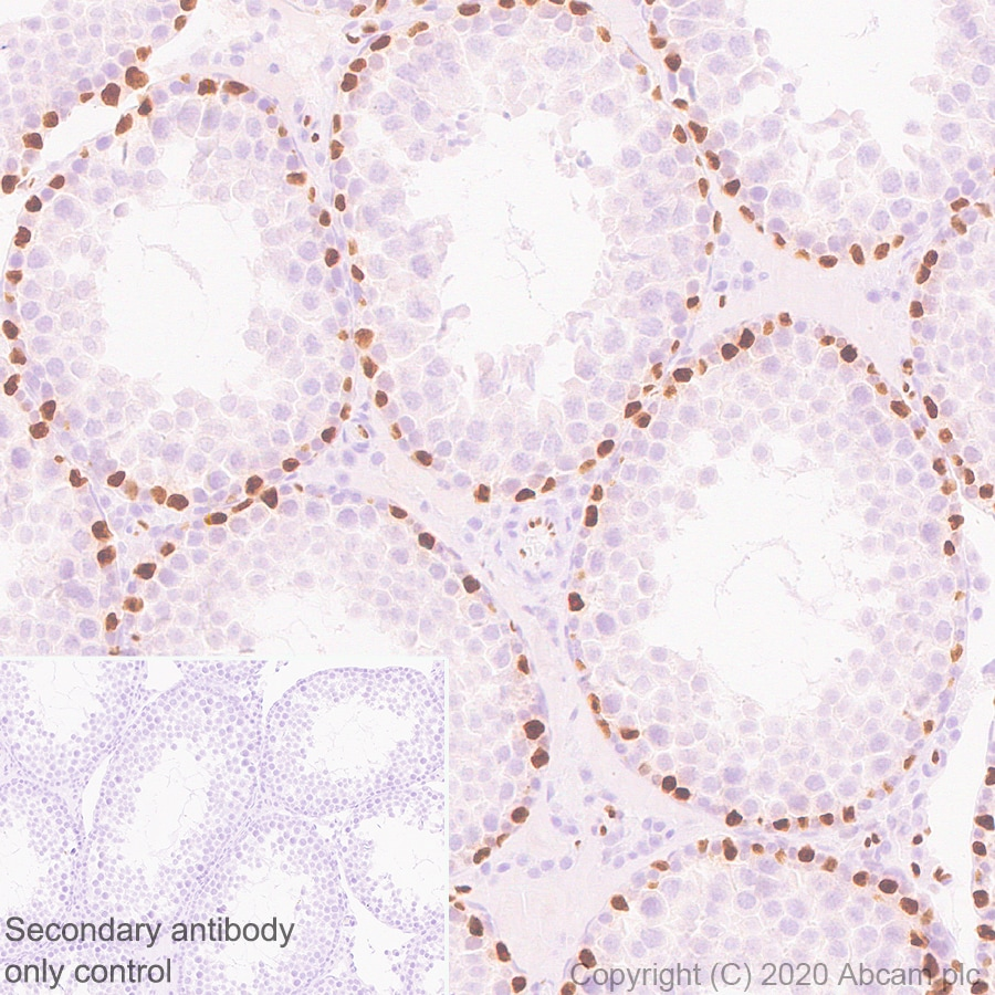 Immunohistochemistry (Formalin/PFA-fixed paraffin-embedded sections) - Anti-Wilms Tumor Protein antibody [EPR23963-116] (ab267377)