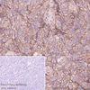 Immunohistochemistry (Formalin/PFA-fixed paraffin-embedded sections) - Anti-Poliovirus Receptor/PVR antibody [EPR23074-270] (ab267389)