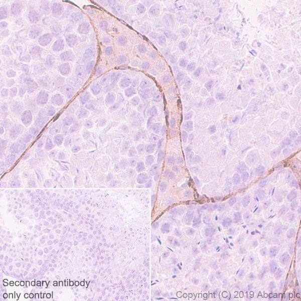Immunohistochemistry (Formalin/PFA-fixed paraffin-embedded sections) - Anti-Laminin gamma 3 antibody [EPR22699-151] - BSA and Azide free (ab267391)