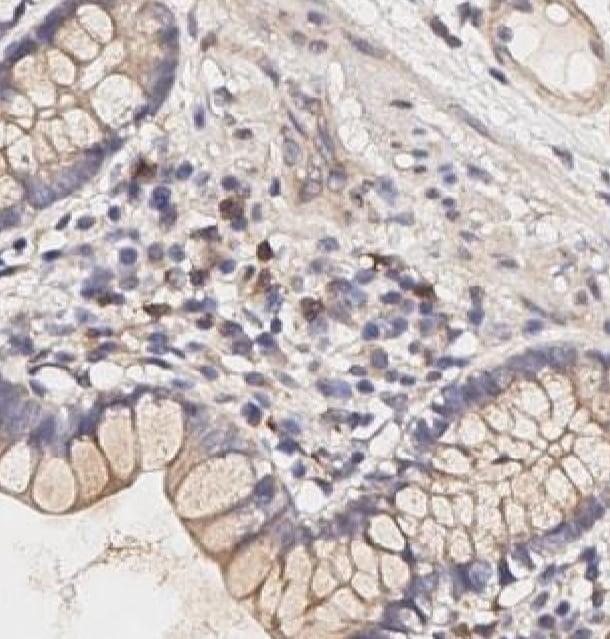 Immunohistochemistry (Formalin/PFA-fixed paraffin-embedded sections) - Anti-IL-17A antibody (ab267403)