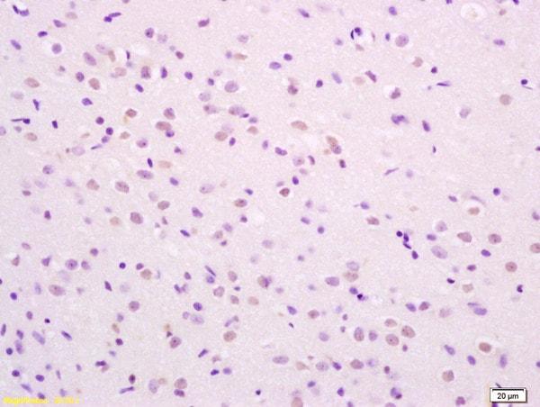 Immunohistochemistry (Formalin/PFA-fixed paraffin-embedded sections) - Anti-SHC (phospho S36) antibody (ab267413)