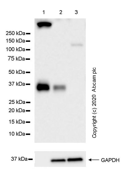 Western blot - Anti-Ficolin 2 antibody [EPR23146-225] (ab267473)