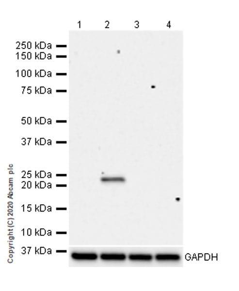 Western blot - Anti-RAB8A (phospho S111) antibody [MJF-R27-30] (ab267492)