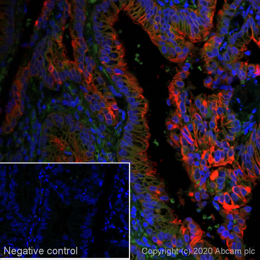 Immunohistochemistry (Formalin/PFA-fixed paraffin-embedded sections) - Alexa Fluor® 647 Anti-MUC4 antibody [SP241] (ab267547)