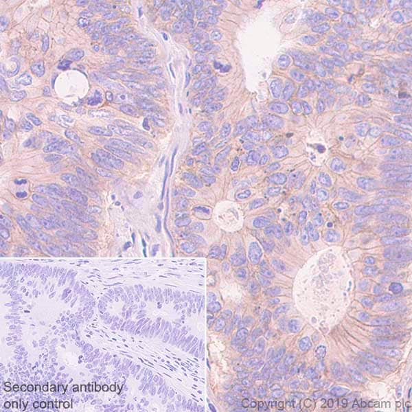 Immunohistochemistry (Formalin/PFA-fixed paraffin-embedded sections) - Anti-Poliovirus Receptor/PVR antibody [EPR22672-151] - BSA and Azide free (ab267794)