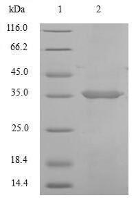 SDS-PAGE - Recombinant Cynomolgus monkey FCGRT/FCRN protein (Tagged) (ab267874)