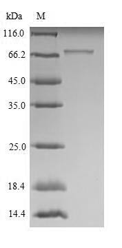 SDS-PAGE - Recombinant Mouse Robo1 protein (His tag) (ab267885)
