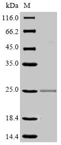SDS-PAGE - Recombinant Mouse CD16 protein (His tag) (ab267886)