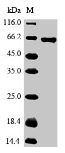 SDS-PAGE - Recombinant Chicken Glypican 3 protein (His tag) (ab267888)