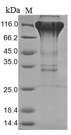 SDS-PAGE - Recombinant Human CSF-1-R protein (Tagged) (ab267953)