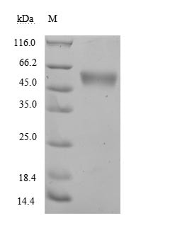 SDS-PAGE - Recombinant human NKG2D protein (Active) (ab267955)