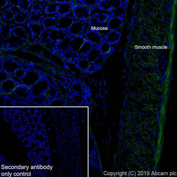 Immunohistochemistry (Frozen sections) - Anti-Fibronectin antibody [EPR23110-25] (ab268021)