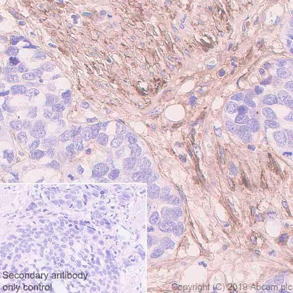 Immunohistochemistry (Formalin/PFA-fixed paraffin-embedded sections) - Anti-Fibronectin antibody [EPR23110-25] - BSA and Azide free (ab268023)