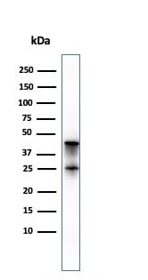Western blot - Anti-Carboxypeptidase A antibody [CPA1/2714] (ab268033)