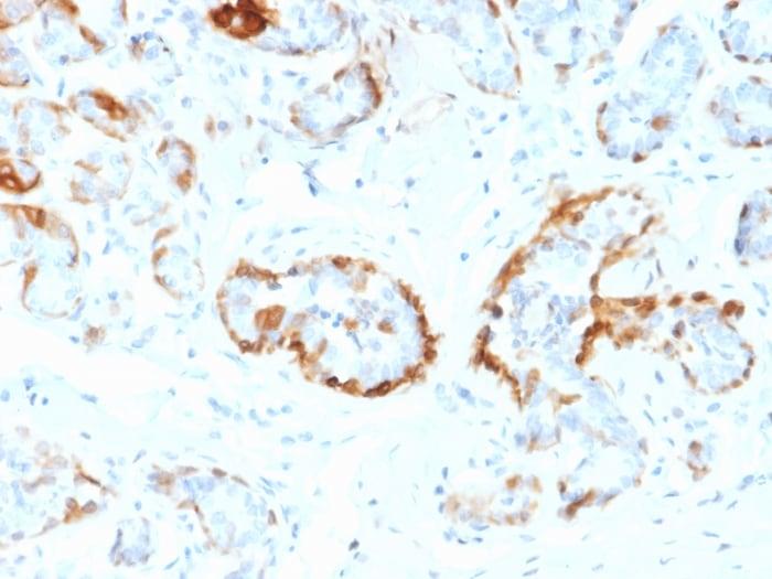 Immunohistochemistry (Formalin/PFA-fixed paraffin-embedded sections) - Anti-Alpha B Crystallin antibody [CPTC-CRYAB-1] (ab268037)