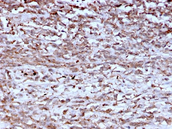 Immunohistochemistry (Formalin/PFA-fixed paraffin-embedded sections) - Anti-Cathepsin K antibody [CTSK/2793] (ab268045)