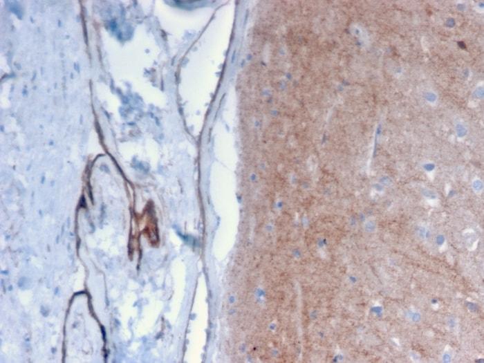 Immunohistochemistry (Formalin/PFA-fixed paraffin-embedded sections) - Anti-Drebrin antibody [DBN1/2879] (ab268046)