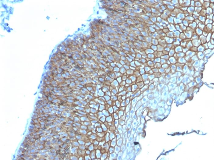 Immunohistochemistry (Formalin/PFA-fixed paraffin-embedded sections) - Anti-Desmoglein 3/PVA antibody [DSG3/2839] (ab268051)
