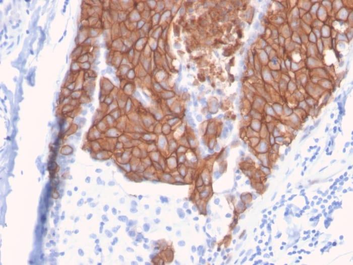 Immunohistochemistry (Formalin/PFA-fixed paraffin-embedded sections) - Anti-C-erb B-2 antibody [ERBB2/3093] (ab268053)
