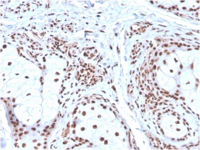 Immunohistochemistry (Formalin/PFA-fixed paraffin-embedded sections) - Anti-Nucleophosmin antibody [NPM1/3286] (ab268090)