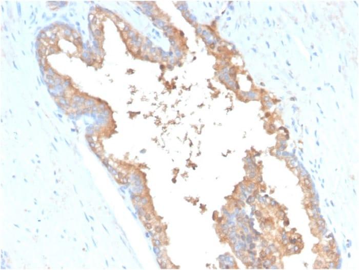Immunohistochemistry (Formalin/PFA-fixed paraffin-embedded sections) - Anti-Transferrin antibody [TF/3001] (ab268117)