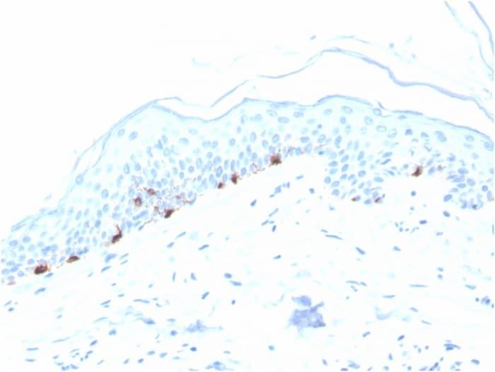 Immunohistochemistry (Formalin/PFA-fixed paraffin-embedded sections) - Anti-TRP1 antibody [TYRP1/3280] (ab268124)
