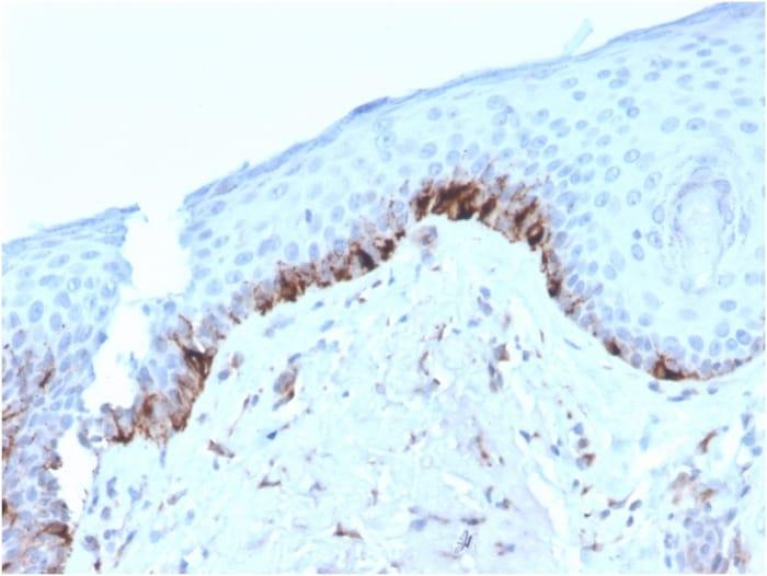 Immunohistochemistry (Formalin/PFA-fixed paraffin-embedded sections) - Anti-TRP1 antibody [TYRP1/3282] (ab268126)