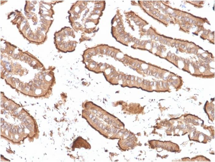 Immunohistochemistry (Formalin/PFA-fixed paraffin-embedded sections) - Anti-Villin antibody [rVIL1/1325] (ab268129)