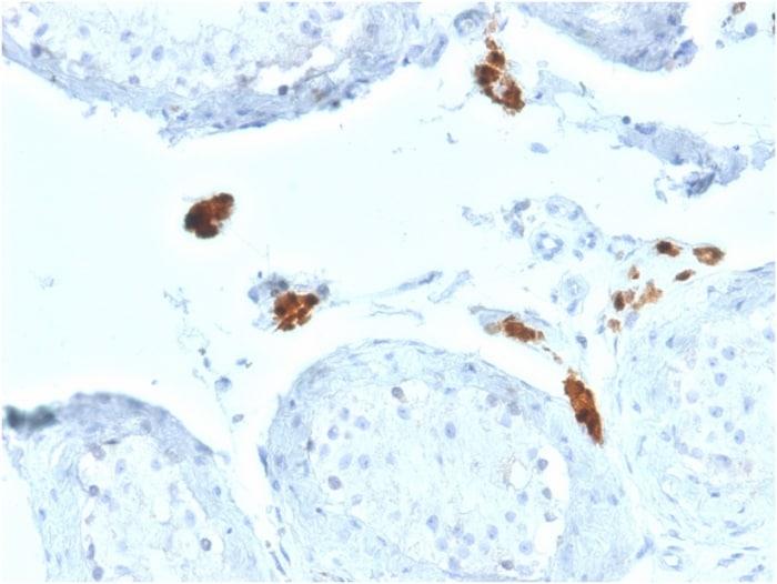 Immunohistochemistry (Formalin/PFA-fixed paraffin-embedded sections) - Anti-Calretinin antibody [CALB2/2602] (ab268135)