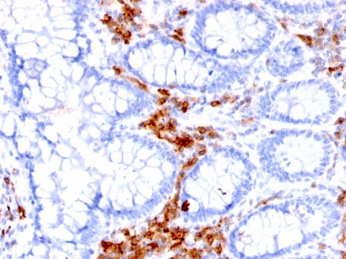 Immunohistochemistry (Formalin/PFA-fixed paraffin-embedded sections) - Anti-CD27 antibody [LPFS2/1611] (ab268144)