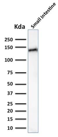 Western blot - Anti-LI Cadherin antibody [CDH17/2617] - BSA and Azide free (ab268149)