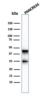 Western blot - Anti-Carboxypeptidase A antibody [CPA1/2713] - BSA and Azide free (ab268152)