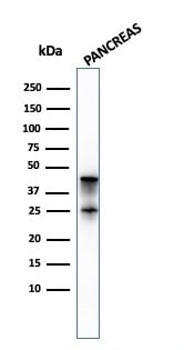 Western blot - Anti-Carboxypeptidase A antibody [CPA1/2714] - BSA and Azide free (ab268153)
