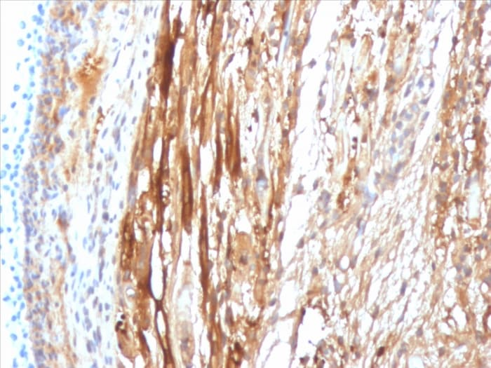 Immunohistochemistry (Formalin/PFA-fixed paraffin-embedded sections) - Anti-Alpha B Crystallin antibody [CPTC-CRYAB-1] - BSA and Azide free (ab268157)