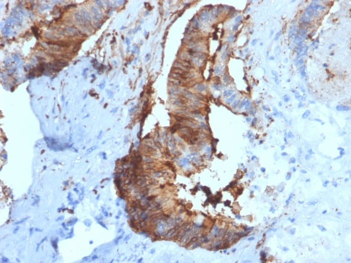 Immunohistochemistry (Formalin/PFA-fixed paraffin-embedded sections) - Anti-Cathepsin D antibody [CTSD/2781] - BSA and Azide free (ab268158)