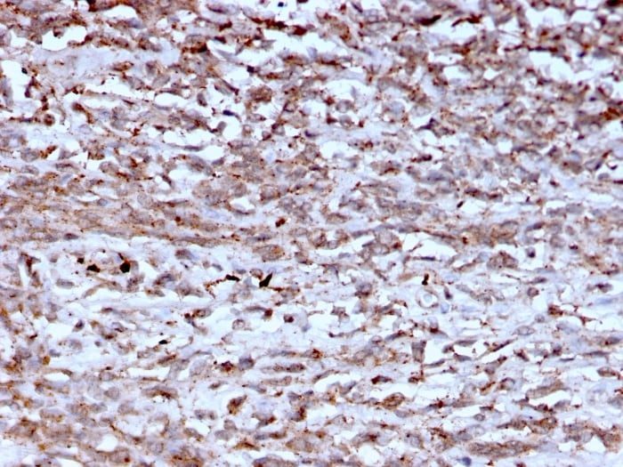 Immunohistochemistry (Formalin/PFA-fixed paraffin-embedded sections) - Anti-Cathepsin K antibody [CTSK/2793] - BSA and Azide free (ab268165)