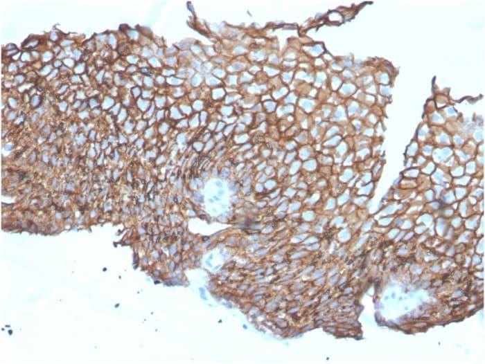 Immunohistochemistry (Formalin/PFA-fixed paraffin-embedded sections) - Anti-Desmoglein 3/PVA antibody [DSG3/2840] - BSA and Azide free (ab268169)
