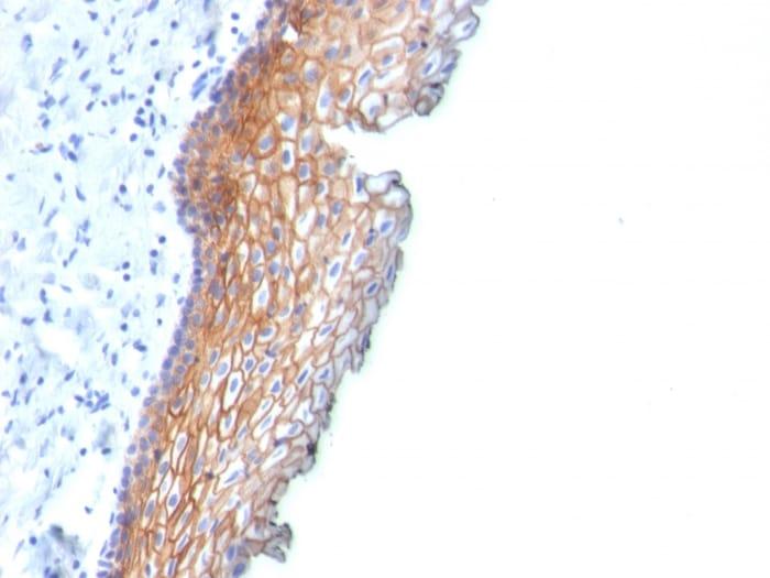 Immunohistochemistry (Formalin/PFA-fixed paraffin-embedded sections) - Anti-Desmoglein 3/PVA antibody [DSG3/2838] - BSA and Azide free (ab268170)