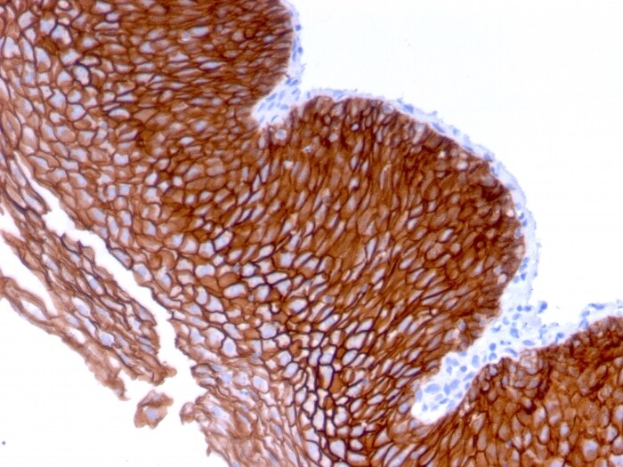Immunohistochemistry (Formalin/PFA-fixed paraffin-embedded sections) - Anti-Desmoglein 3/PVA antibody [DSG3/2839] - BSA and Azide free (ab268171)