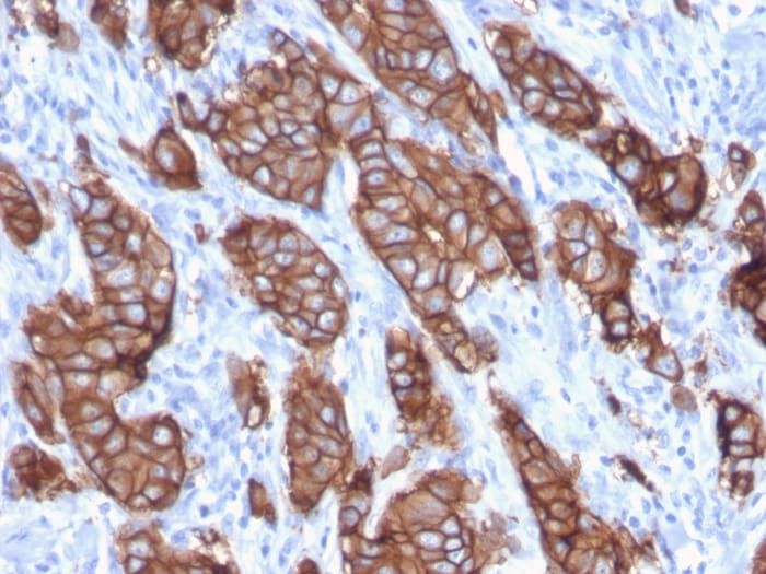 Immunohistochemistry (Formalin/PFA-fixed paraffin-embedded sections) - Anti-C-erb B-2 antibody [ERBB2/3093] - BSA and Azide free (ab268174)