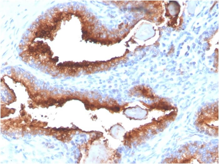 Immunohistochemistry (Formalin/PFA-fixed paraffin-embedded sections) - Anti-PSMA  antibody [FOLH1/3734] - BSA and Azide free (ab268182)