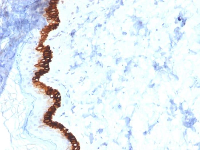 Immunohistochemistry (Formalin/PFA-fixed paraffin-embedded sections) - Anti-Cytokeratin 15 antibody [KRT15/2554] - BSA and Azide free (ab268198)