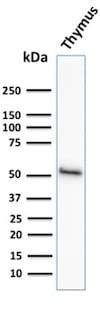 Western blot - Anti-Cytokeratin 15 antibody [KRT15/2958] - BSA and Azide free (ab268199)
