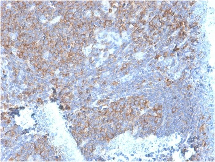 Immunohistochemistry (Formalin/PFA-fixed paraffin-embedded sections) - Anti-67kDa Laminin Receptor antibody [RPSA/2699] - BSA and Azide free (ab268200)