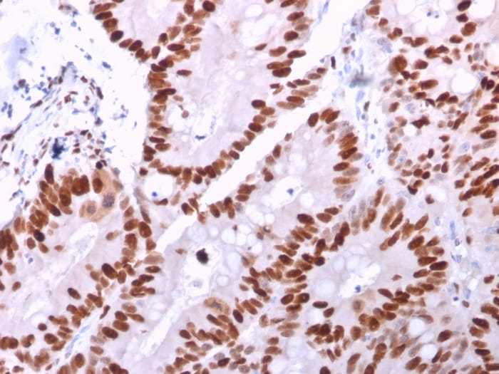 Immunohistochemistry (Formalin/PFA-fixed paraffin-embedded sections) - Anti-MCM6 antibody [MCM6/2999] - BSA and Azide free (ab268204)