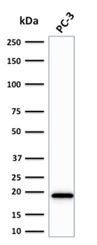Western blot - Anti-NME2 antibody [CPTC-NME2-2] - BSA and Azide free (ab268210)