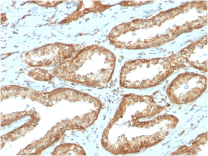 Immunohistochemistry (Formalin/PFA-fixed paraffin-embedded sections) - Anti-YB1 antibody [YBX1/2430] - BSA and Azide free (ab268215)