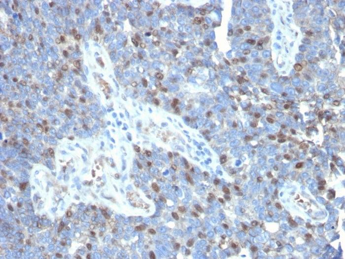 Immunohistochemistry (Formalin/PFA-fixed paraffin-embedded sections) - Anti-ROR gamma antibody [RORC/2941] - BSA and Azide free (ab268233)