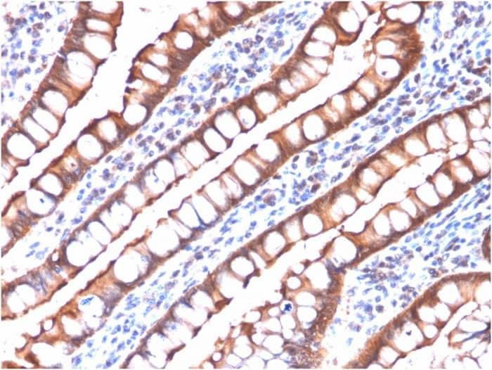 Immunohistochemistry (Formalin/PFA-fixed paraffin-embedded sections) - Anti-Villin antibody [rVIL1/1325] - BSA and Azide free (ab268252)